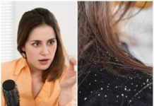 tips to remove dandruff