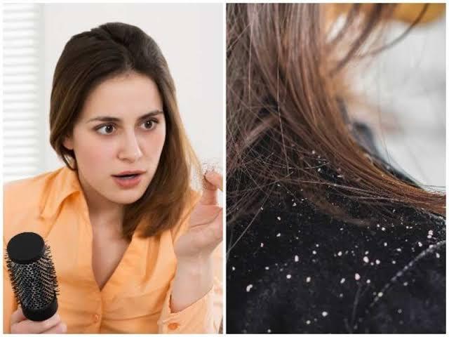 tips to remove dandruff